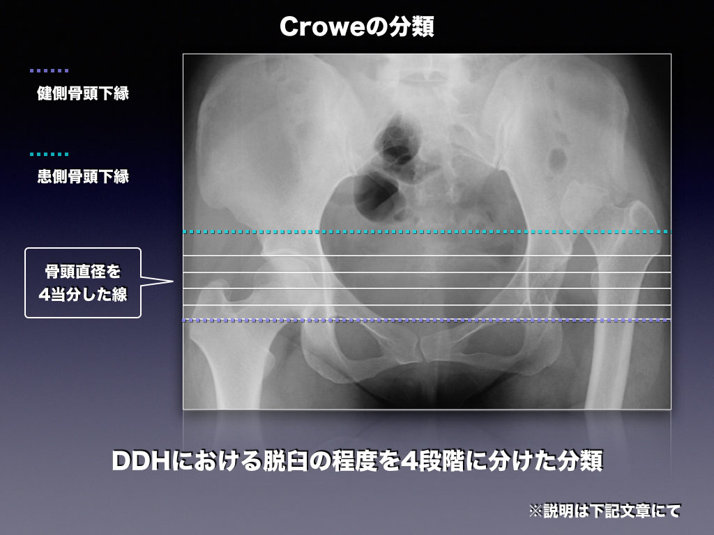 Croweの分類 股関節脱臼の程度分類