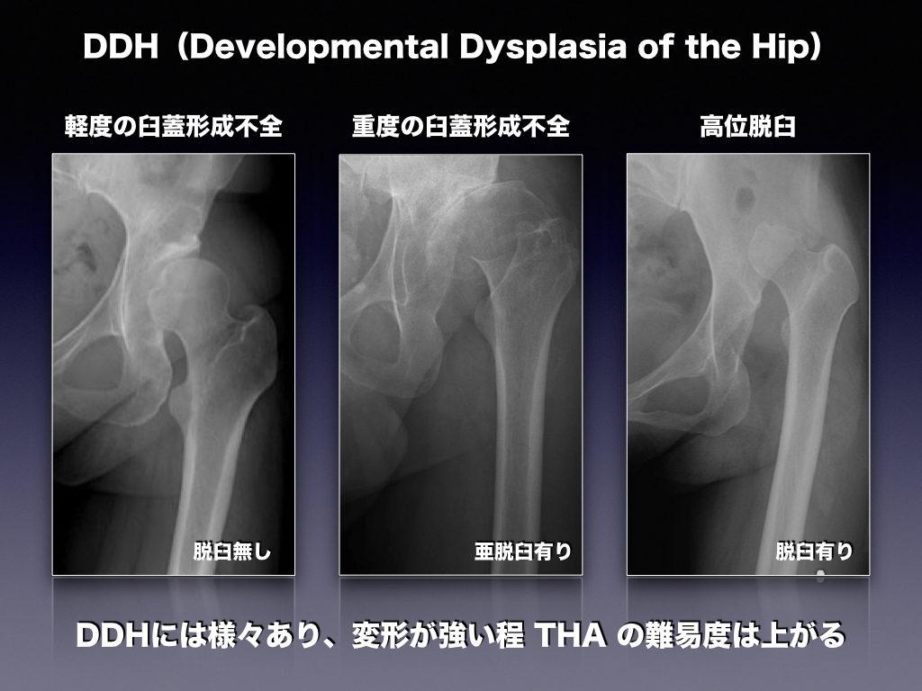 発育成股関節形成不全 DDHとは