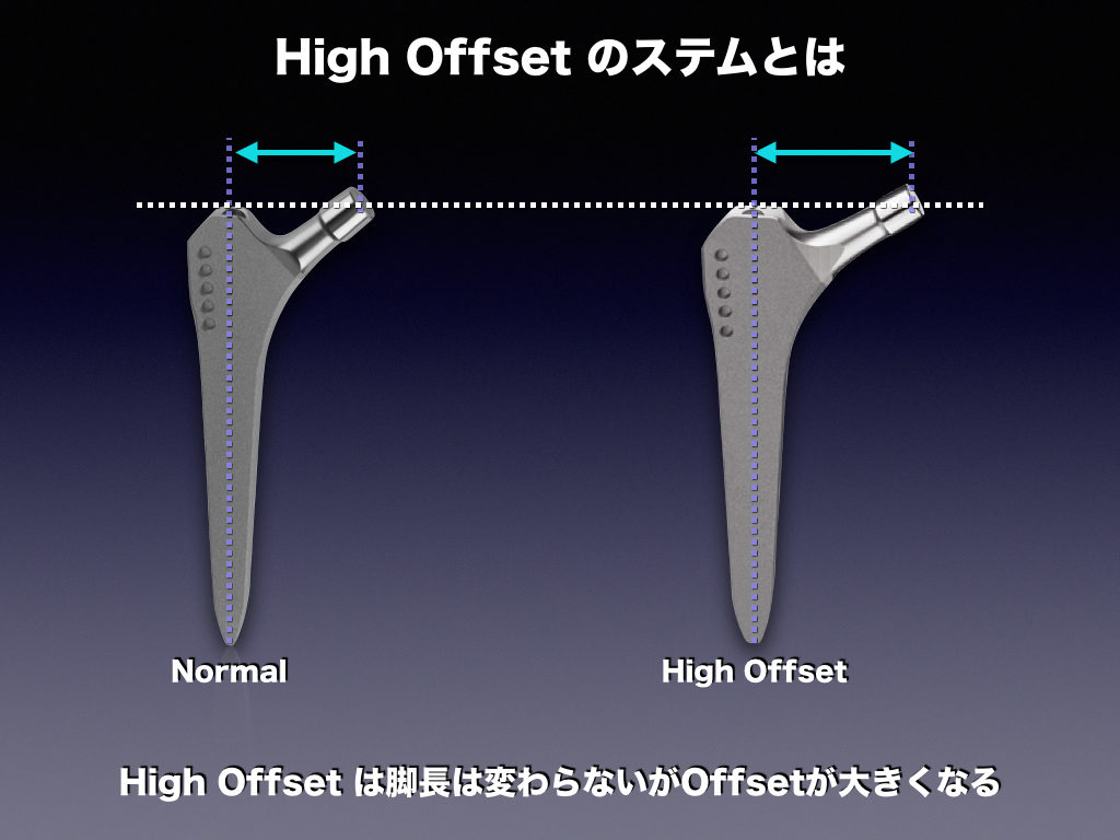 High OffsetのStem