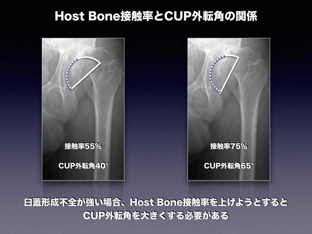 Host Bone接触率とCUP外転角の関係