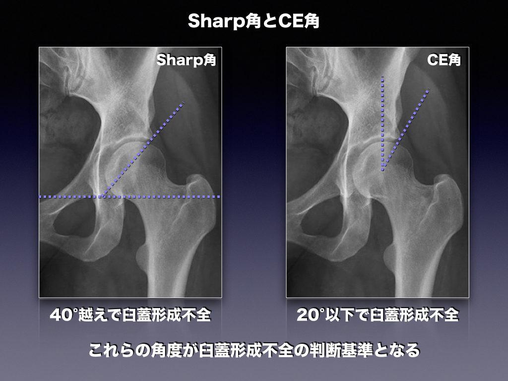 Sharp角 CE角