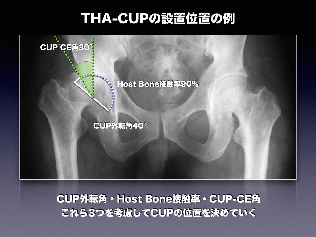 THA-CUPの設置例。条件を満たしているか?