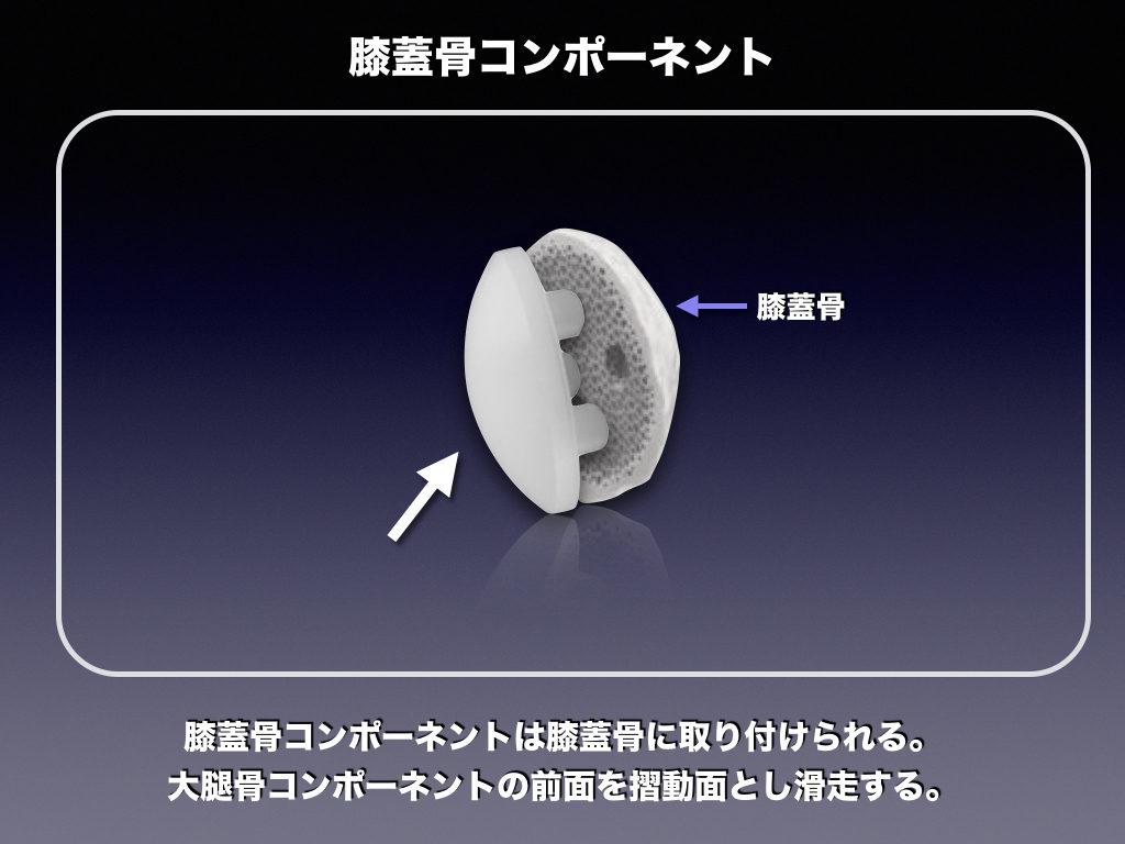 TKAインプラントの名称「膝蓋骨コンポーネント」