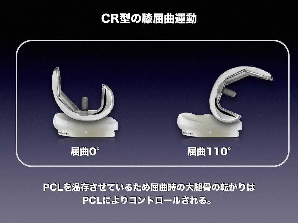 TKA-CRの屈曲運動(PCL依存)
