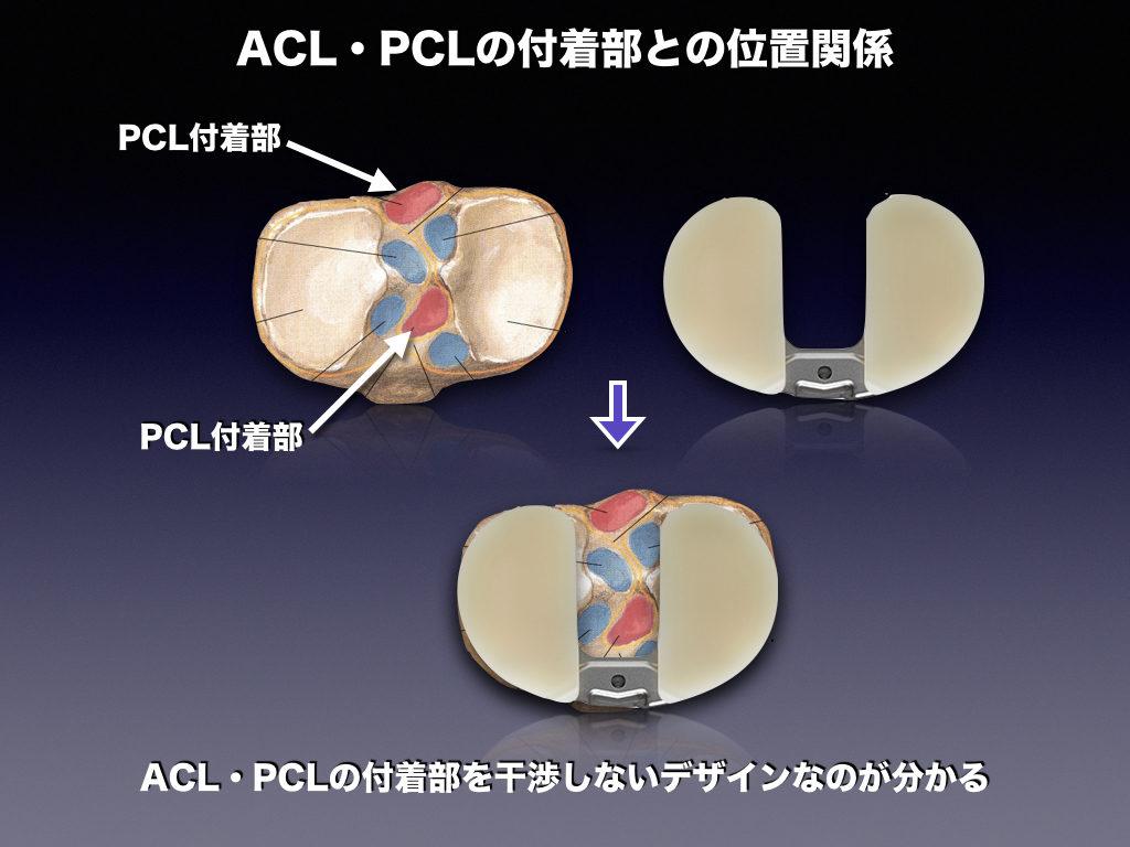 TKA-BCPのインプラントと十字靭帯の関係