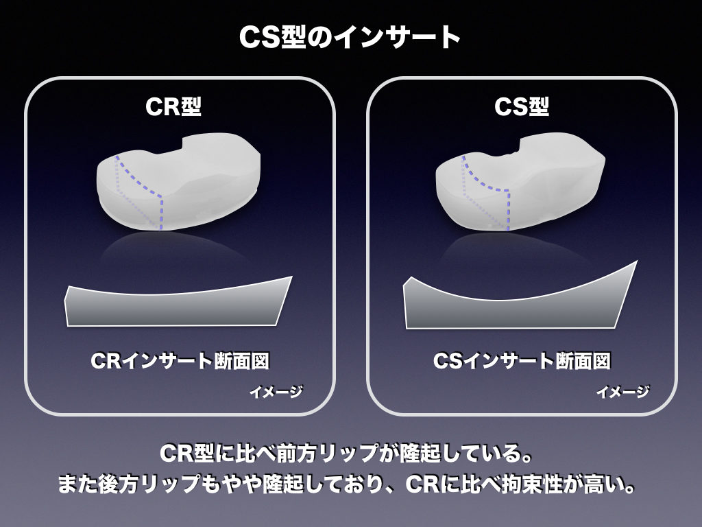 TKA-CSのインサートの特徴