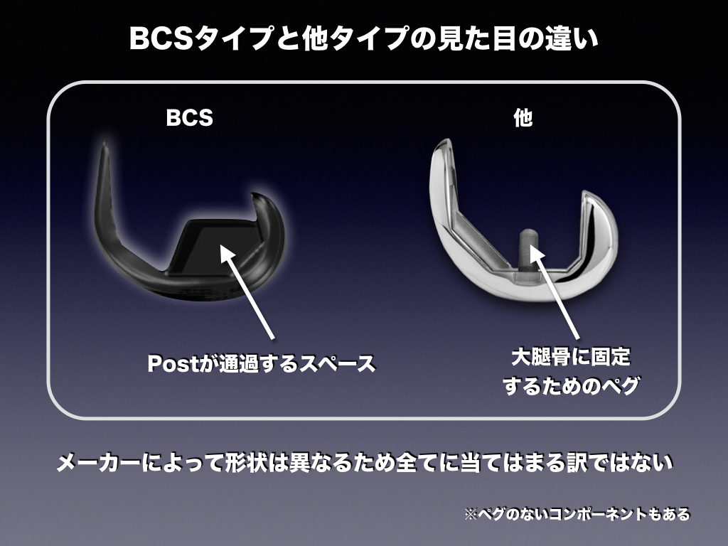 PSとBCSの構造的違い(矢状面)