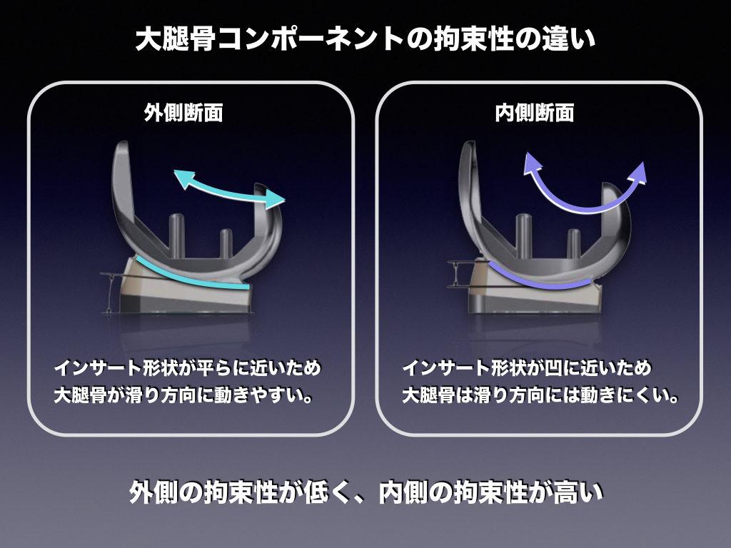 大腿骨コンポーネントの拘束性(内外側比較)