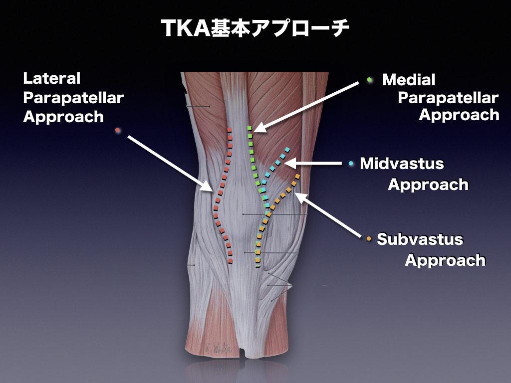 TKA基本アプローチ