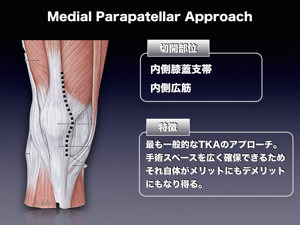 TKA-Medial Parapatellar Approach