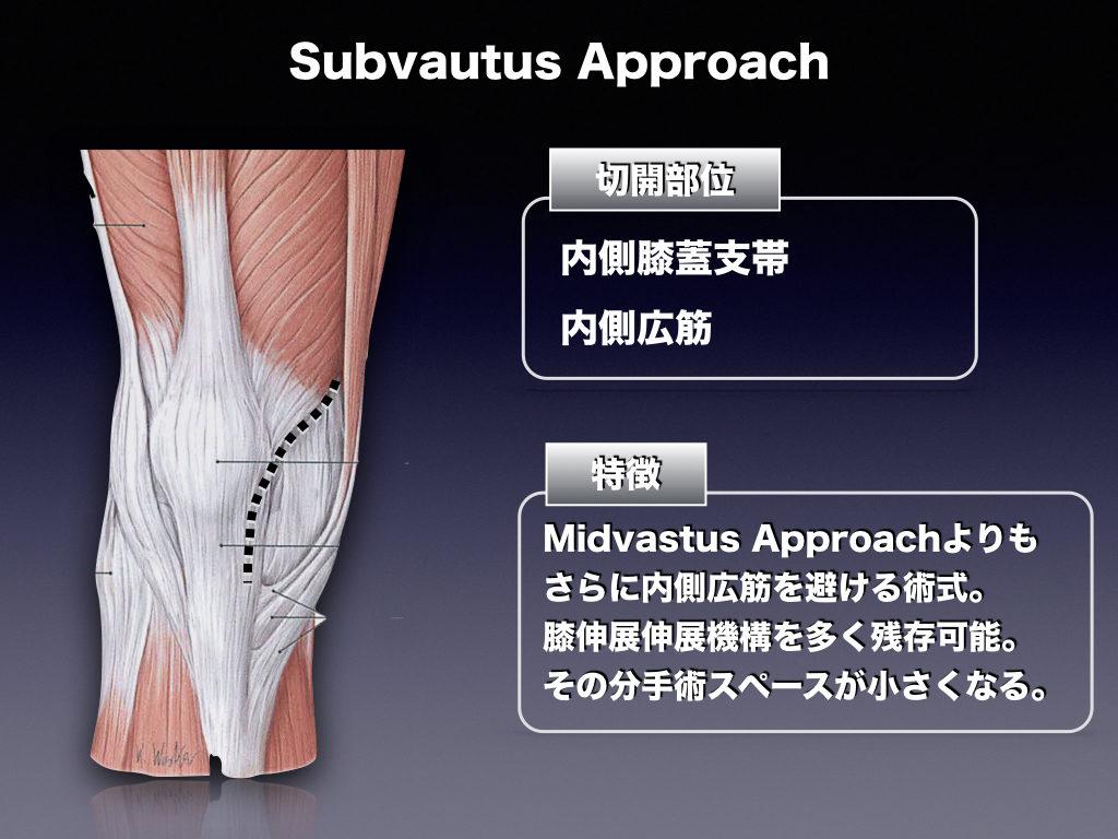 TKA-Subvastus Approach