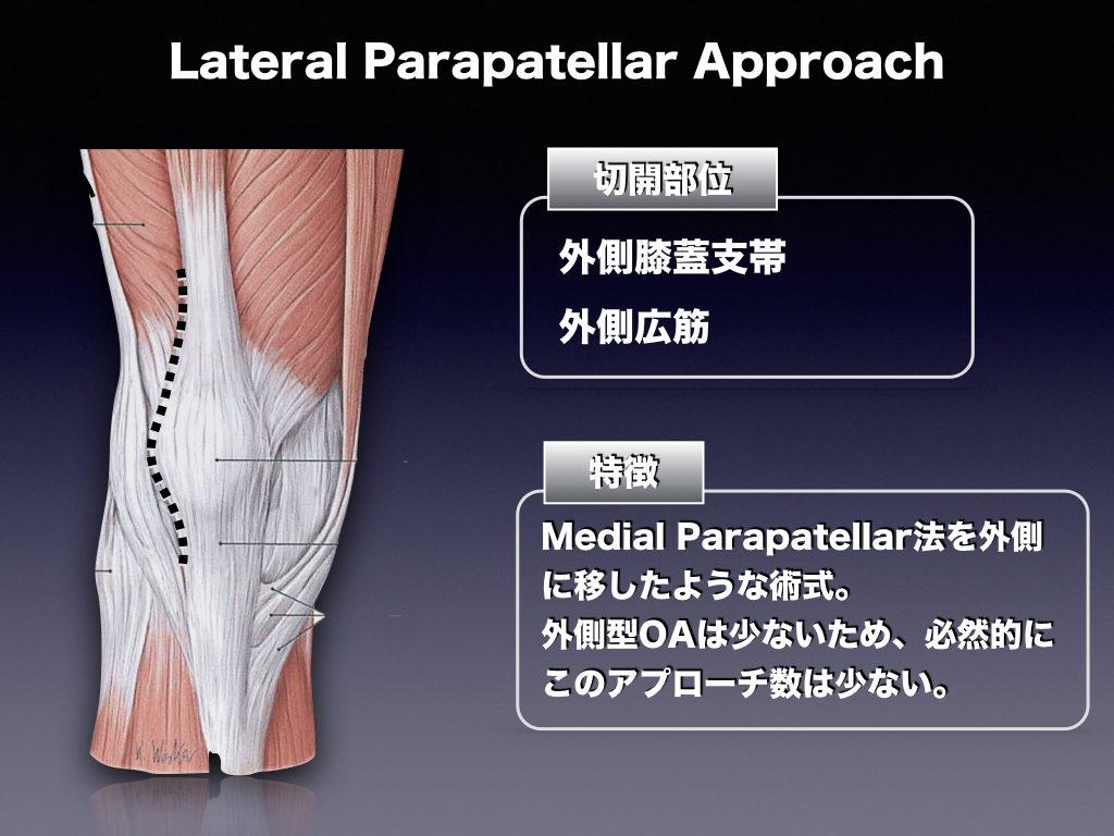 TKA-Lataral Parapatellar Approach