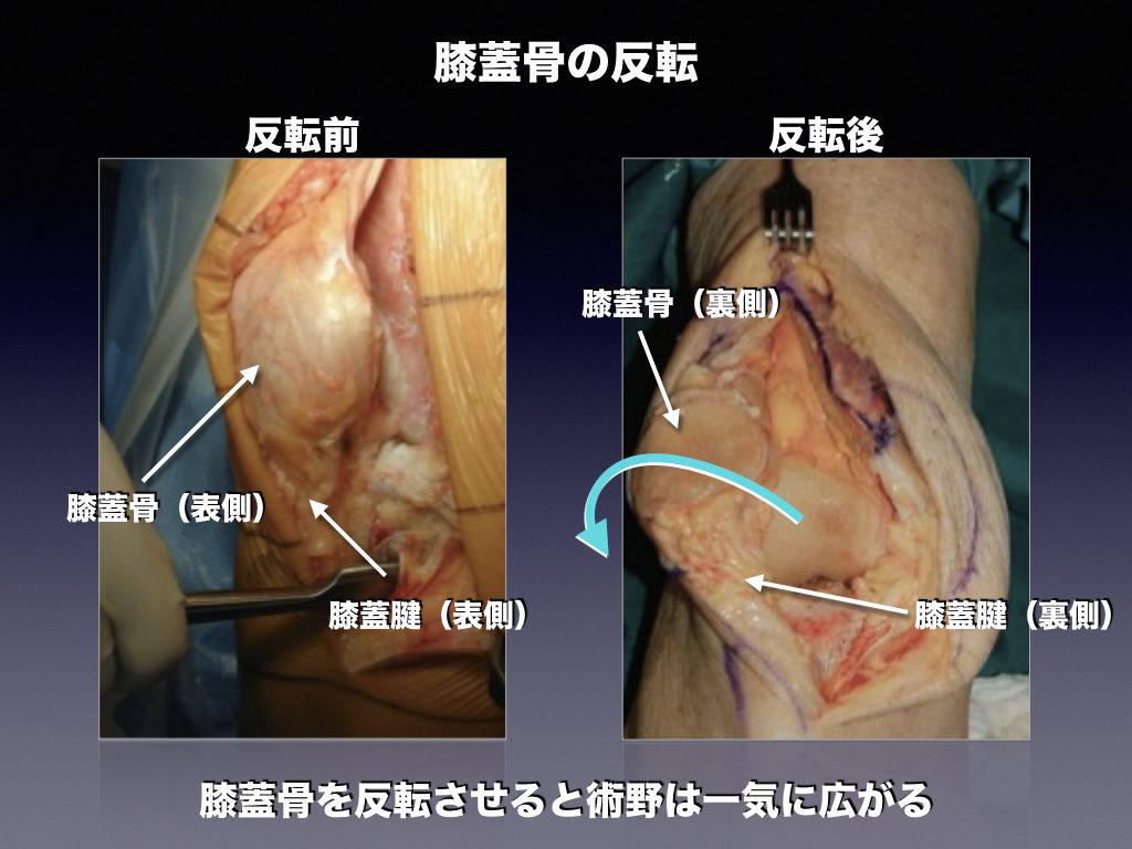 反転した膝蓋骨