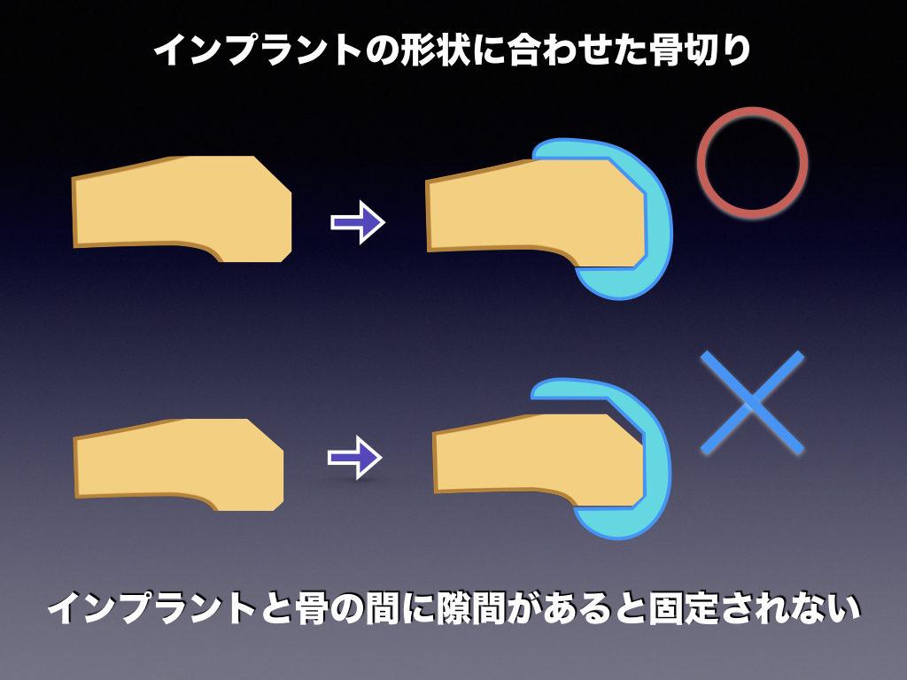インプラントの形状に合わせた骨切り2
