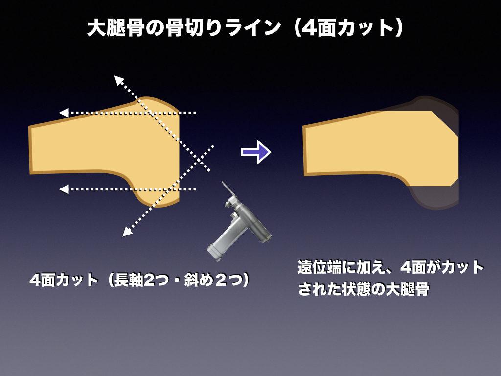 大腿骨の骨切り(4面カット)