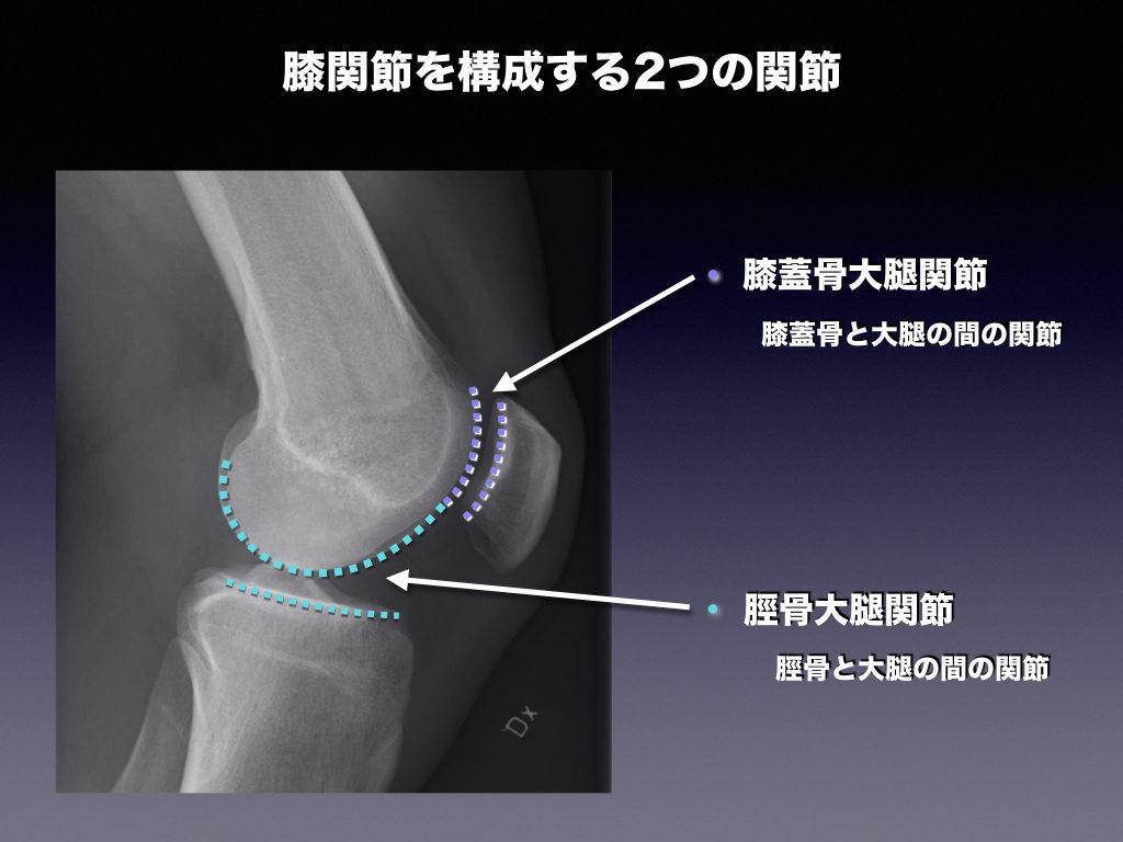 膝関節の2つの関節