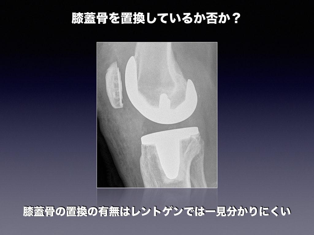 膝蓋骨のインプラントは写らない