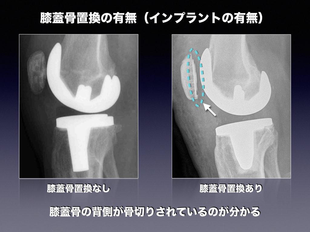 膝蓋骨インプラント有無の比較