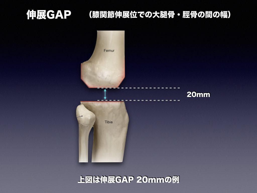 伸展GAPの例
