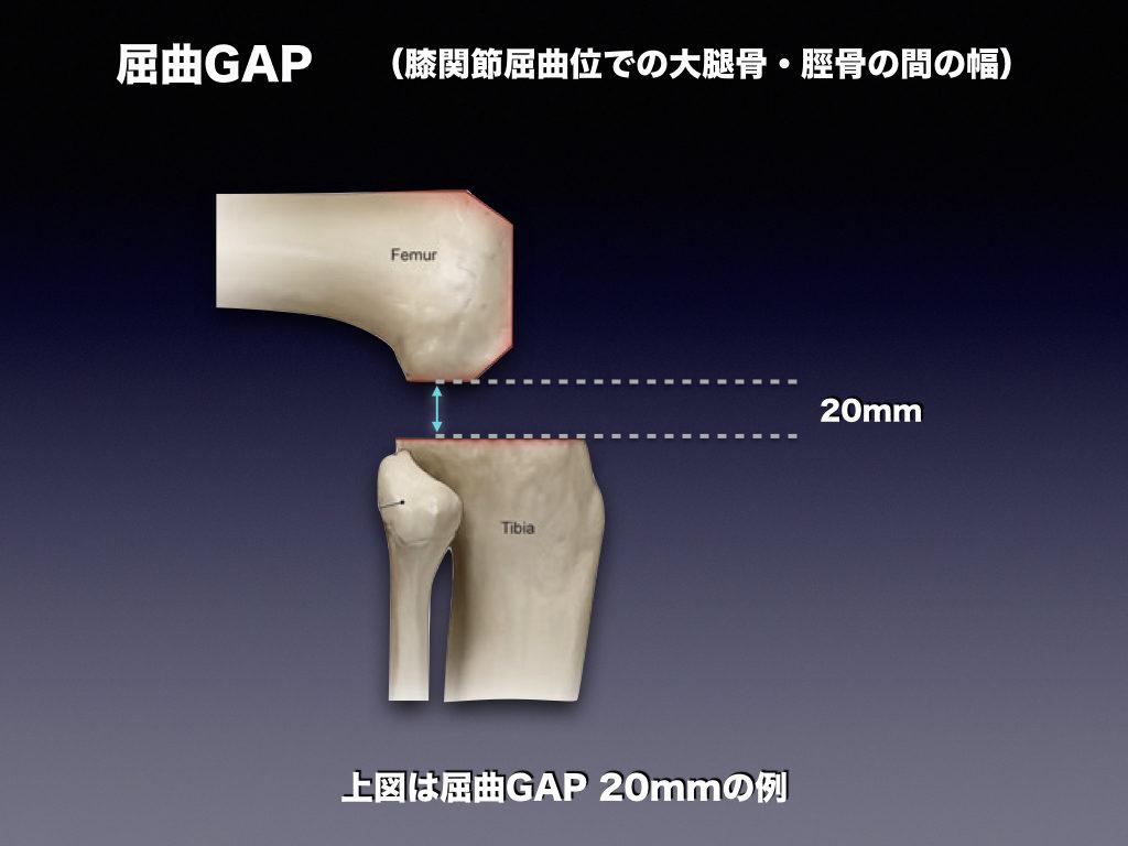 屈曲GAPの例