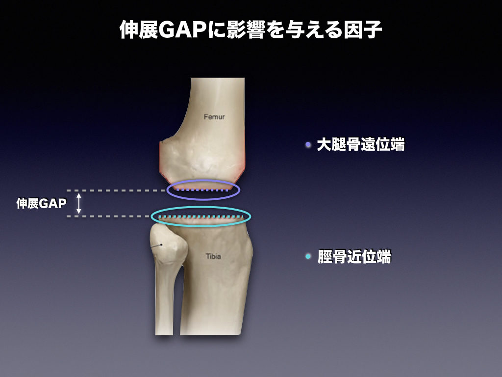 伸展GAPに影響する因子