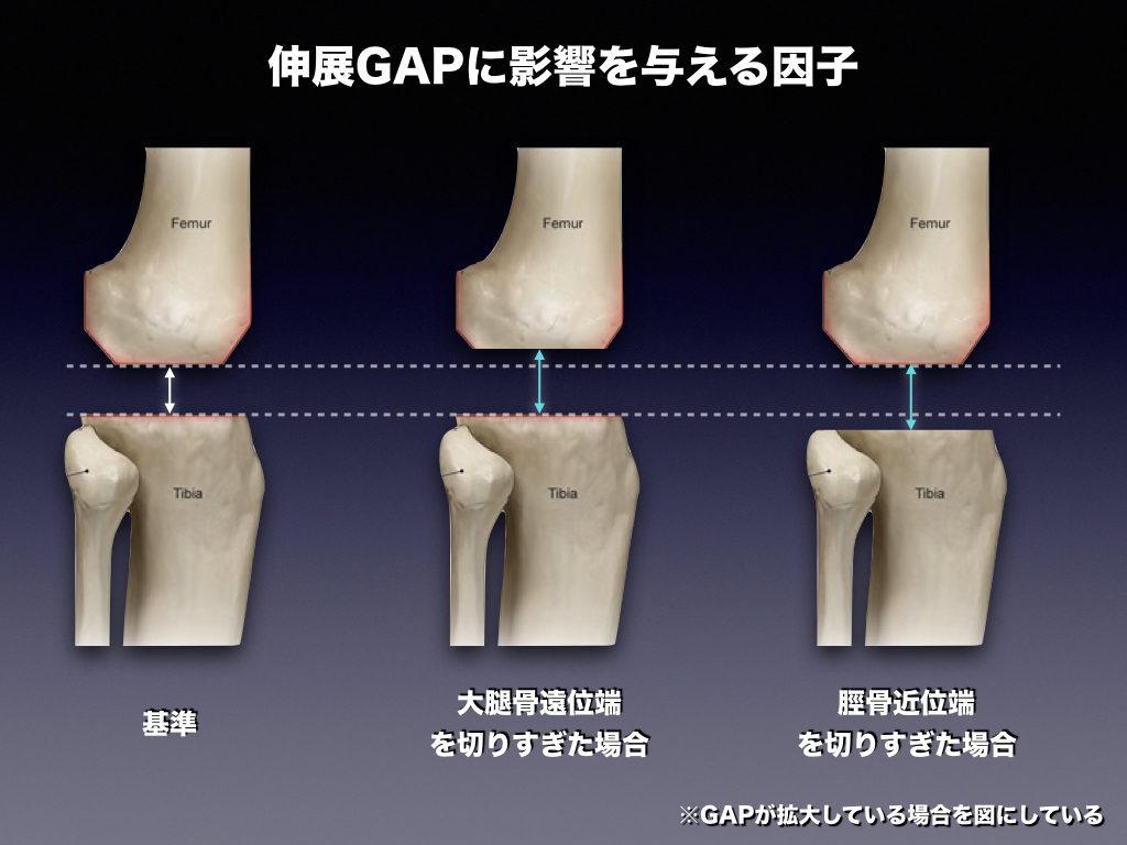伸展GAPに影響する因子2