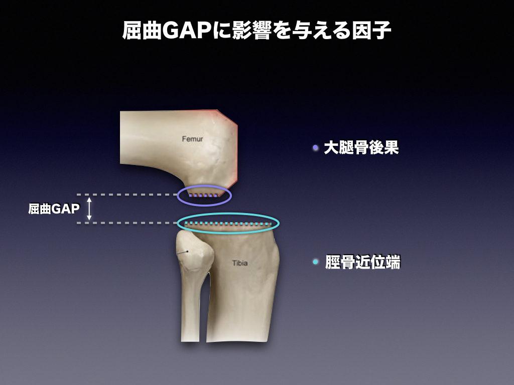 屈曲GAPに影響する因子