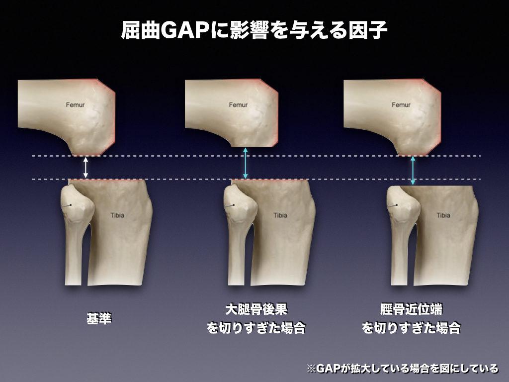 屈曲GAPに影響する因子2