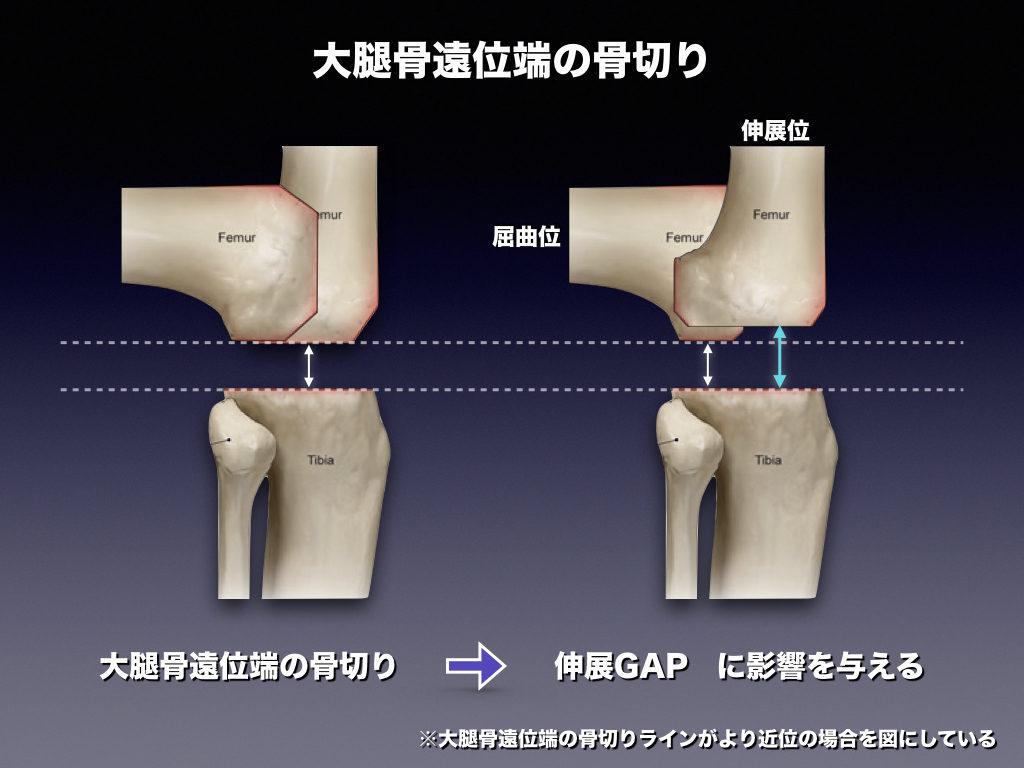 大腿骨遠位端の骨切り