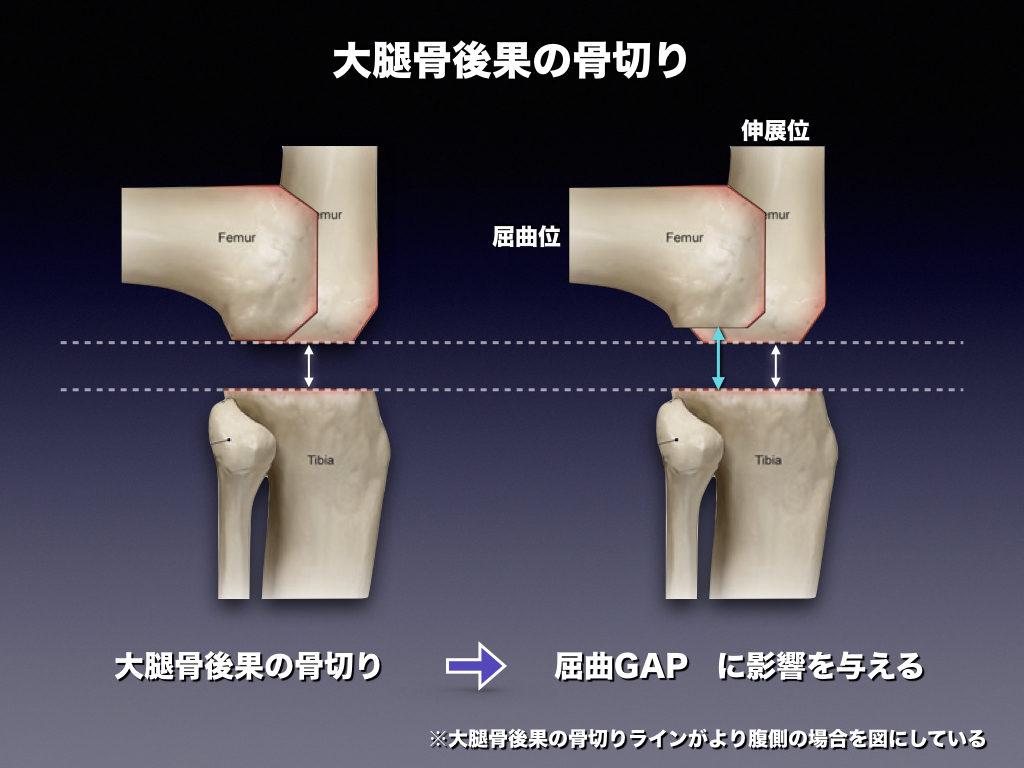 大腿骨後果の骨切り