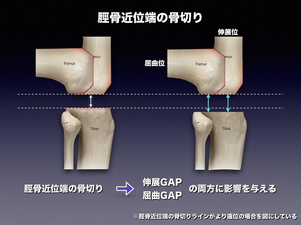 脛骨近位端の骨切り
